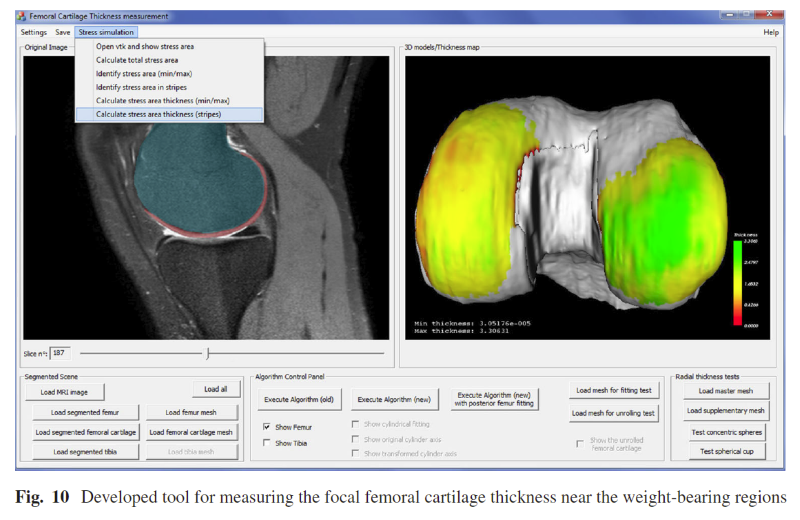 Automatic measurement and visualization of focal femoral